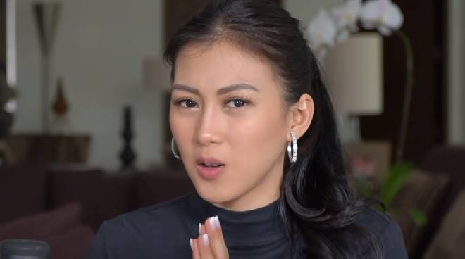 'Don't judge me,' Alex Gonzaga says as she admits undergoing lip thread lifting procedure