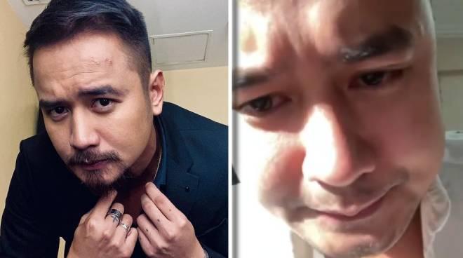 JM de Guzman suffers a panic attack while working online