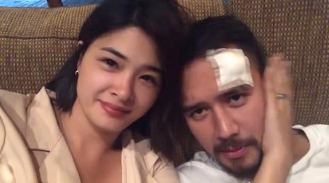 TINGNAN: JM De Guzman, sugatan sa shoot ng bagong Kapamilya series
