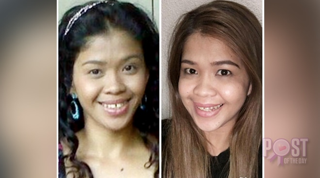 THEN AND NOW: Melai Cantiveros' stunning transformation