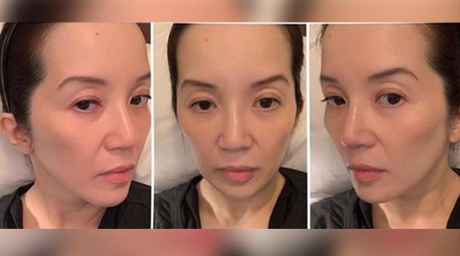 """Kris Aquino shares health update with untouched selfies: """"Ayokong mabuhay na niloloko kayo at ang sarili ko"""""""