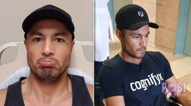 Derek Ramsay suffers back injury: 'I really hope it's nothing serious'