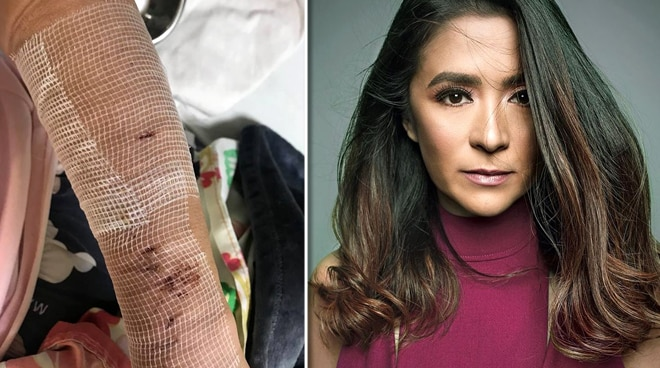 LOOK: Antoinette Taus undergoes surgery after getting bitten by a dog