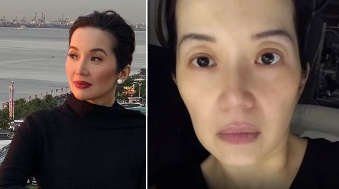 Kris Aquino gets injured in an accident at her home