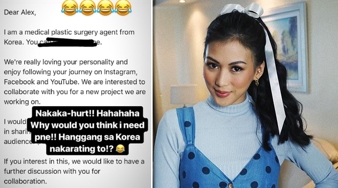 Alex Gonzaga reacts to plastic surgery offer from South Korea