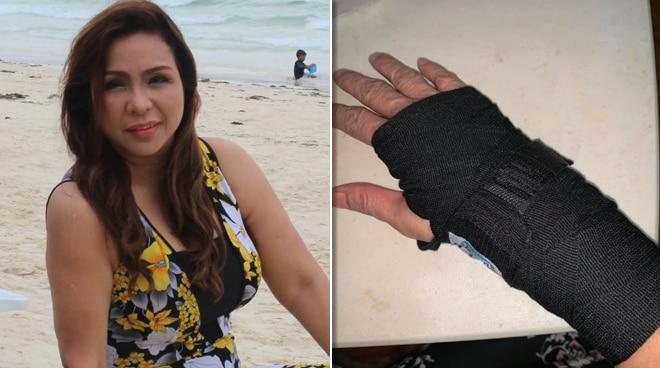 Claire Dela Fuente, injured sa aksidente sa kanyang restaurant